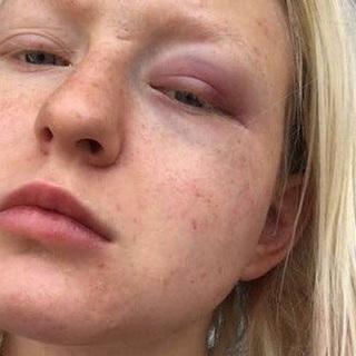 Тося Чайкина стала жертвой насилия